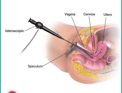 Isteroscopia diagnostica