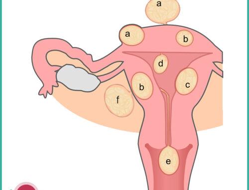 Fibromi uterini: sintomi, diagnosi, terapia