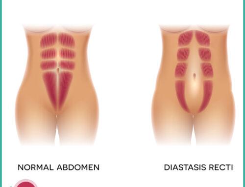 Diastasi dei muscoli retti addominali : fattori di rischio