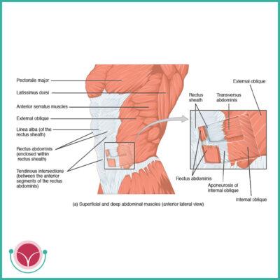intervento chirurgico per diastasi dei retti addominali