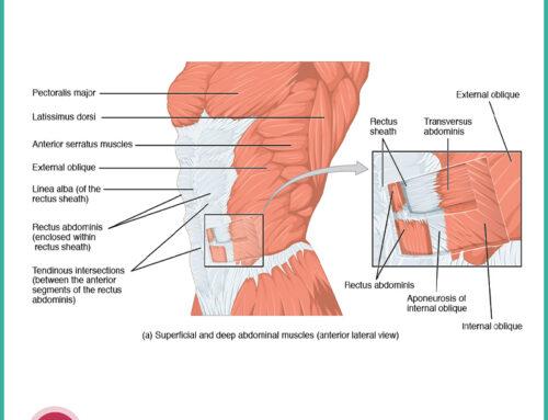 L'intervento chirurgico per diastasi dei retti addominali