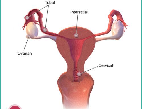 Trattamento chirurgico e non nella gravidanza extrauterina