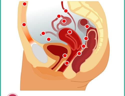 L'endometriosi – conosciamola meglio