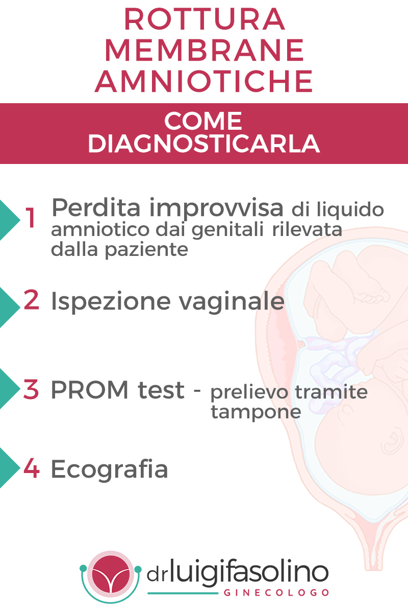 diagnosticare-gestire-rottura-membrane-amniotiche